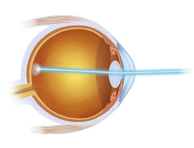 What Is Glaucoma Los Angeles